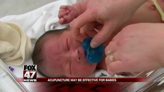 Acupuncture may be effective for babies