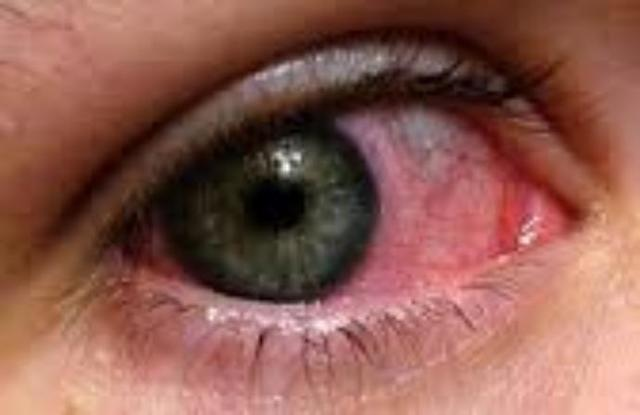 Natural Ways To Rid Pink Eye