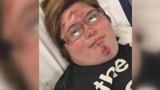 Pothole sends girl on bike to hospital