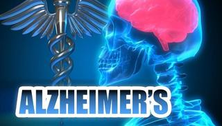 Alzheimer's rates will rise dramatically